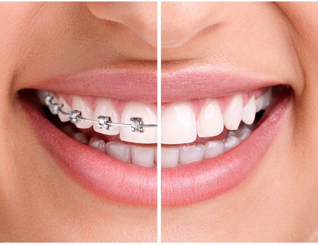 Braces_Orthodontics_Celebrity-Smiles-2-1024x792